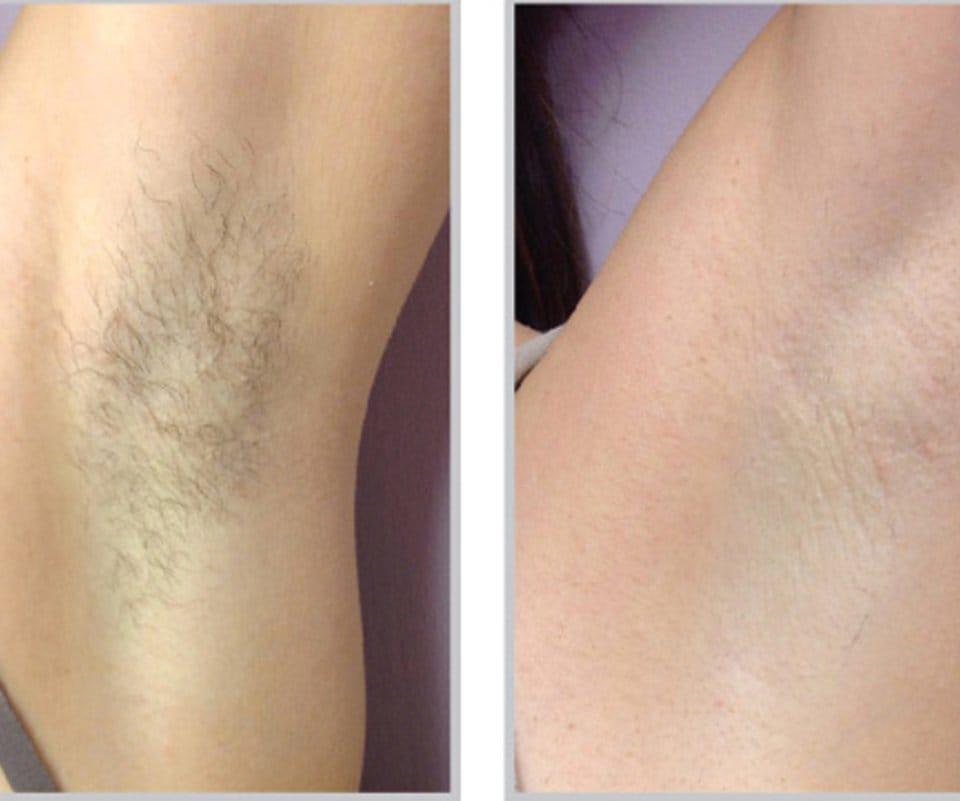 Laser Hair Removal Gallery Skintegrity Medspa In Kirkland Wa